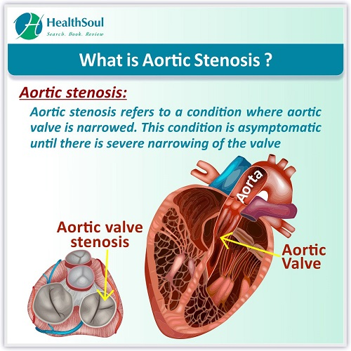 What is Aortic Stenosis | HealthSoul