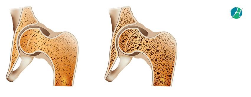 Bone Cancer - Symptoms and Treatment