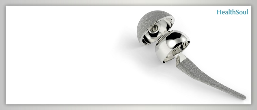 The Potential Risks Of Hip Implants | HealthSoul