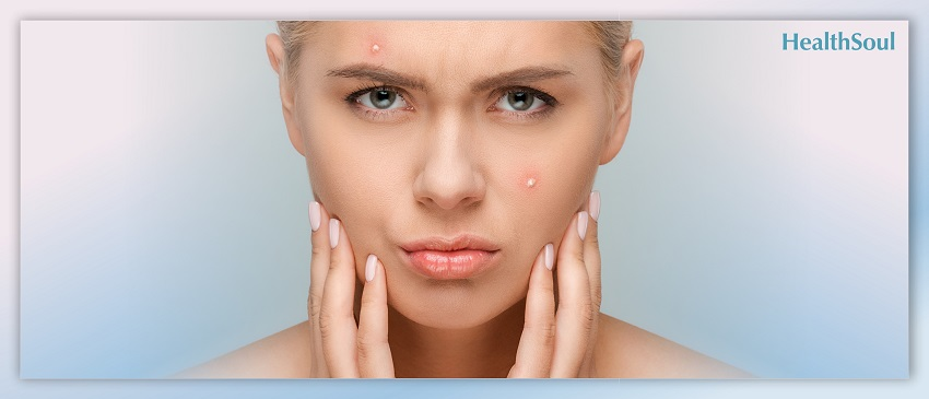 6 Easy Ways to Treat Acne and Get Long-Lasting Results   HealthSoul