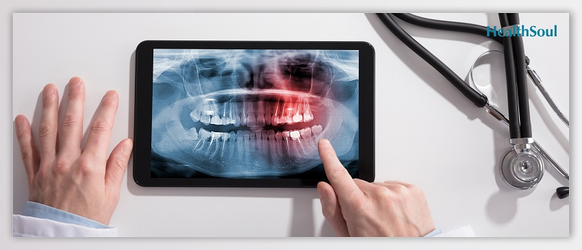 All The Wisdom About Your Wisdom Teeth | HealthSoul
