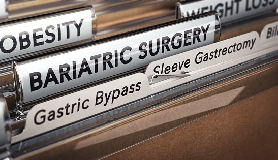Everything You Need to Know About Endoscopic Sleeve Gastroplasty | HealthSoul