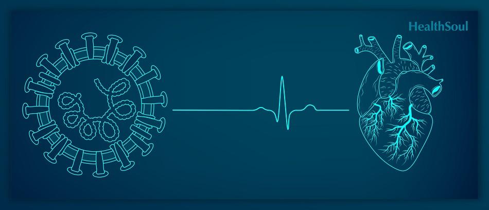 History of Heart Failure and COVID-19 Prognosis | HealthSoul