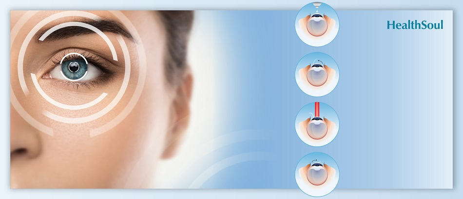 Is LASIK eye surgery safe -The truth versus the myths | HealthSoul