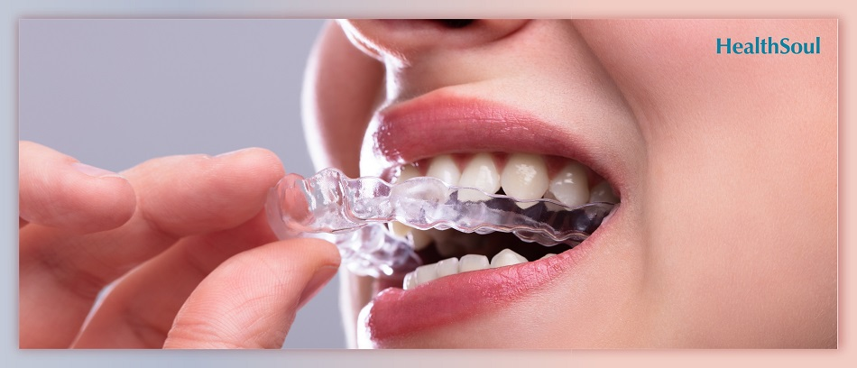 Who Can Benefit From Clear Aligners | HealthSoul