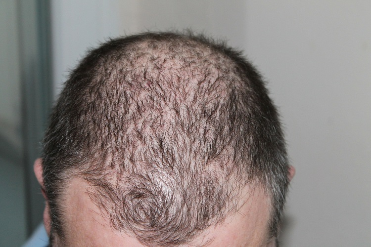 Causes of Hair Thinning