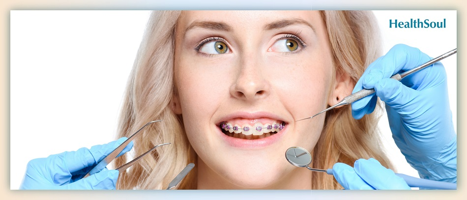 What To Know When You Need To Get Braces As An Adult | HealthSoul