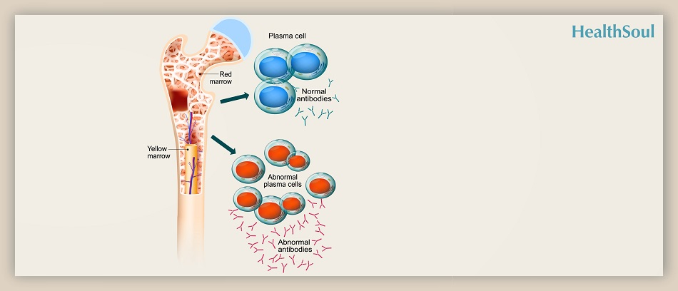 What is Better for Patients with Multiple Myeloma | HealthSoul