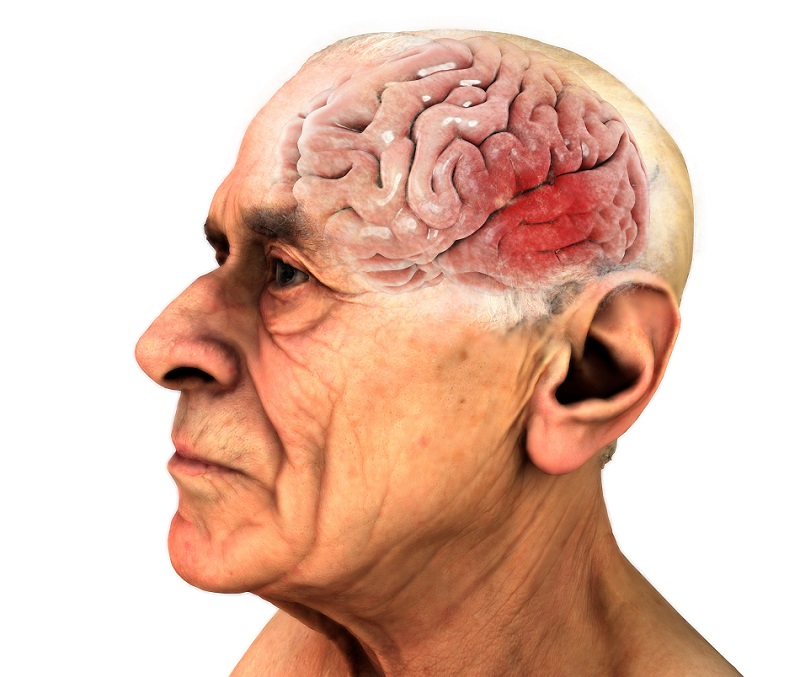 9 Potential Causes of Brain Tumors | HealthSoul