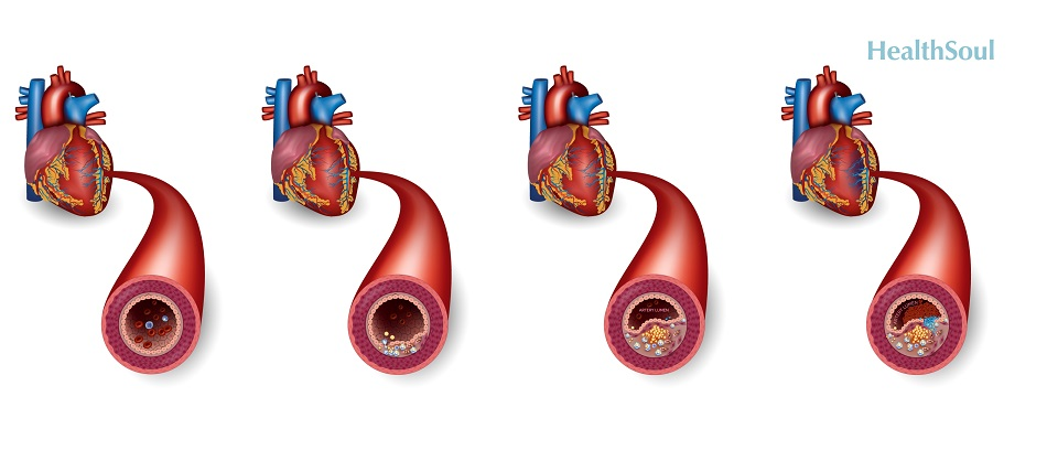 Are You at Risk of Cardiovascular Disease | HealthSoul