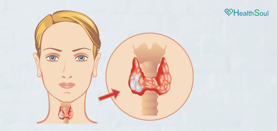 Watch Out For These Signs When It Comes To Thyroid Cancer   HealthSoul